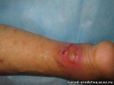 Болезни золотистого стафилококка